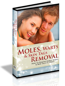 Moles, Warts & Skin Tags Removal - Natural Techniques for Home Use