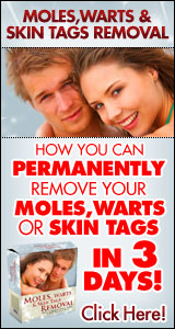 Wart removal at home
