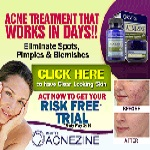 Click here for Acnezine acne treatment